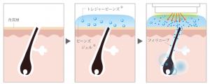 フェイシャルラボ-S.S.C.光フェイシャルの脱毛効果-画像.