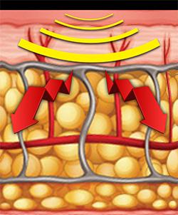 シルフィスリムスパッツの脚痩せ効果-画像