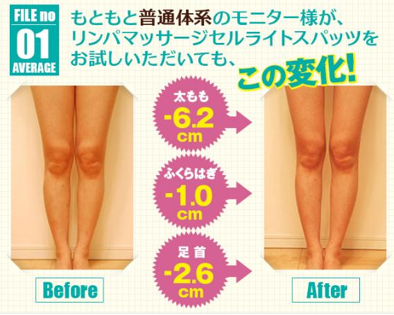 リンパマッサージセルライトスパッツ-脚痩せ効果-画像