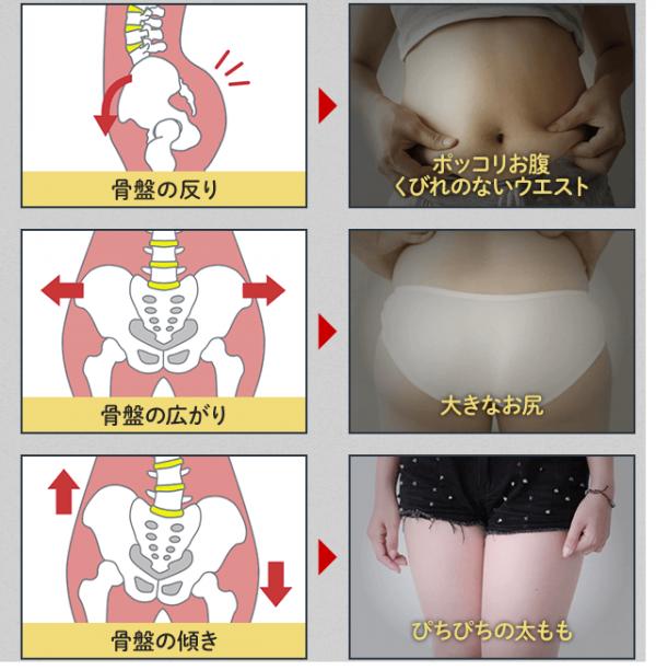 骨盤の歪みと下半身太りの関係-画像