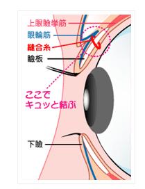 埋没法-瞼板法-画像