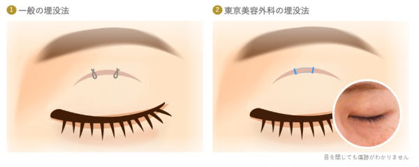東京美容外科のオリジナルの埋没法-画像