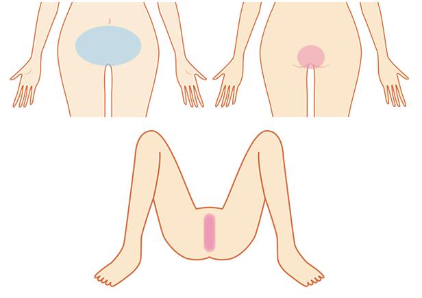 DKBCのデリケートゾーン脱毛の対象部位-画像