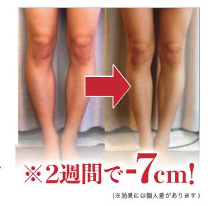 パエンナスリムの脚痩せ効果-画像