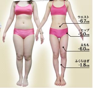 vituleの痩身コース体験者のビフォー・アフター-写真