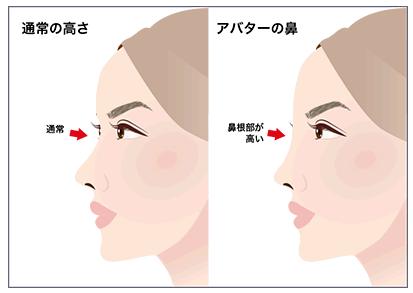 プロテーゼの失敗例-アバター鼻の特徴