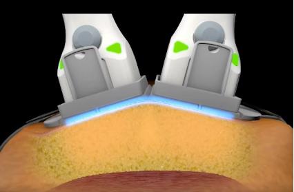 レーザー痩身マシン-スカルプシュアの施術イメージ
